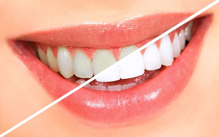 Teeth Whitening for Teens