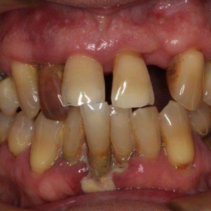 Cosmetic Dentistry Lakewood Colorado