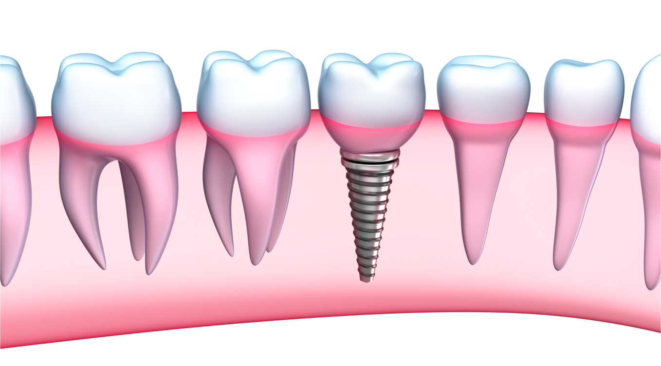 Are Dental Implants in Your Future?
